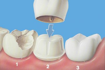 krunice-za-zube