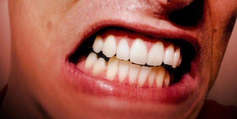 skripanje zubima-compressed